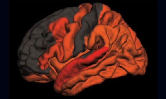 Sleep Patterns Offer Clues to Alzheimer's and How to Fight It.