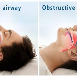 How Harmful Can Sleep Apnea Be?